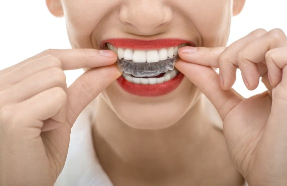 How Can I Get Invisalign For Cheap?